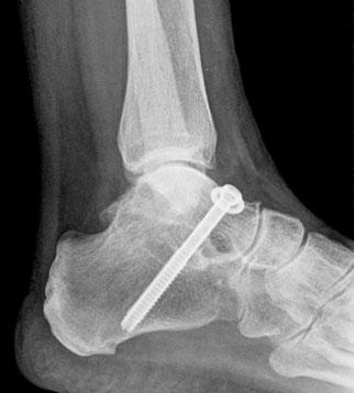 ankle-subtalar-arthrodesis-