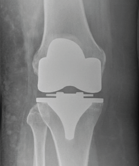 knee-replacement_orig