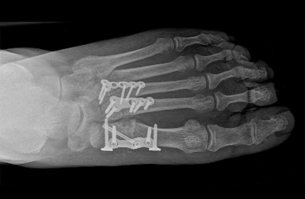midfoot-arthritis