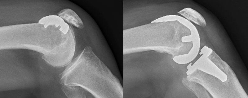 patello-femoral-replacement