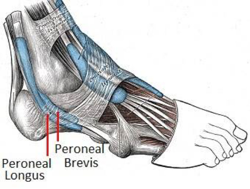 peroneal-tendon-injury-with-ganglion-cyst